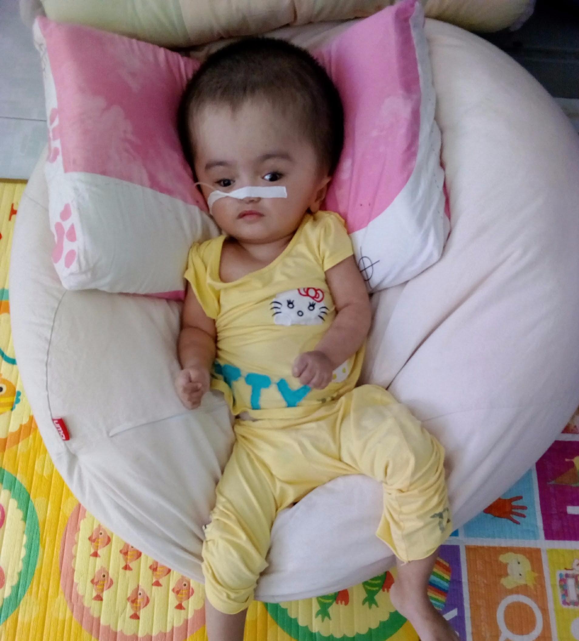 Helft Vietnamesischen Kindern Mit Hydrocephalus How Many Pairs Of